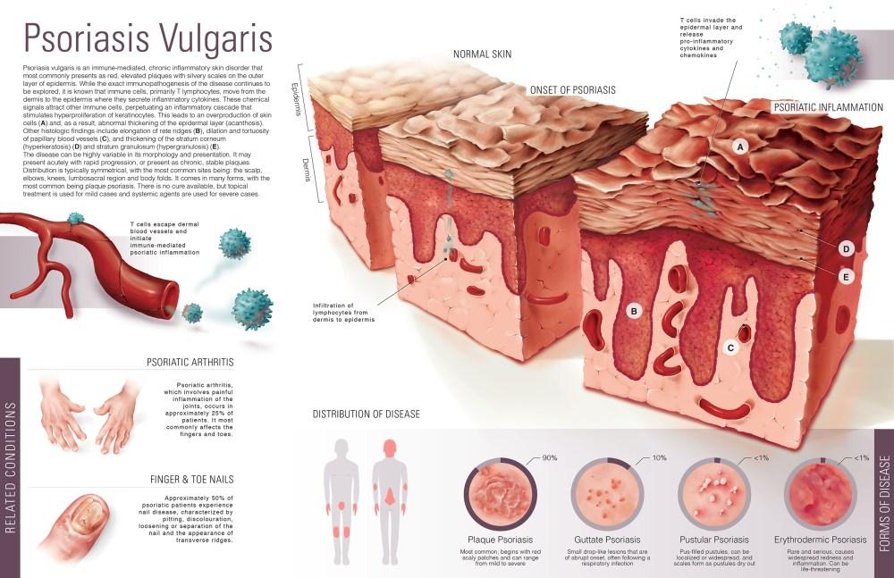 medium resolution of common skin disorders