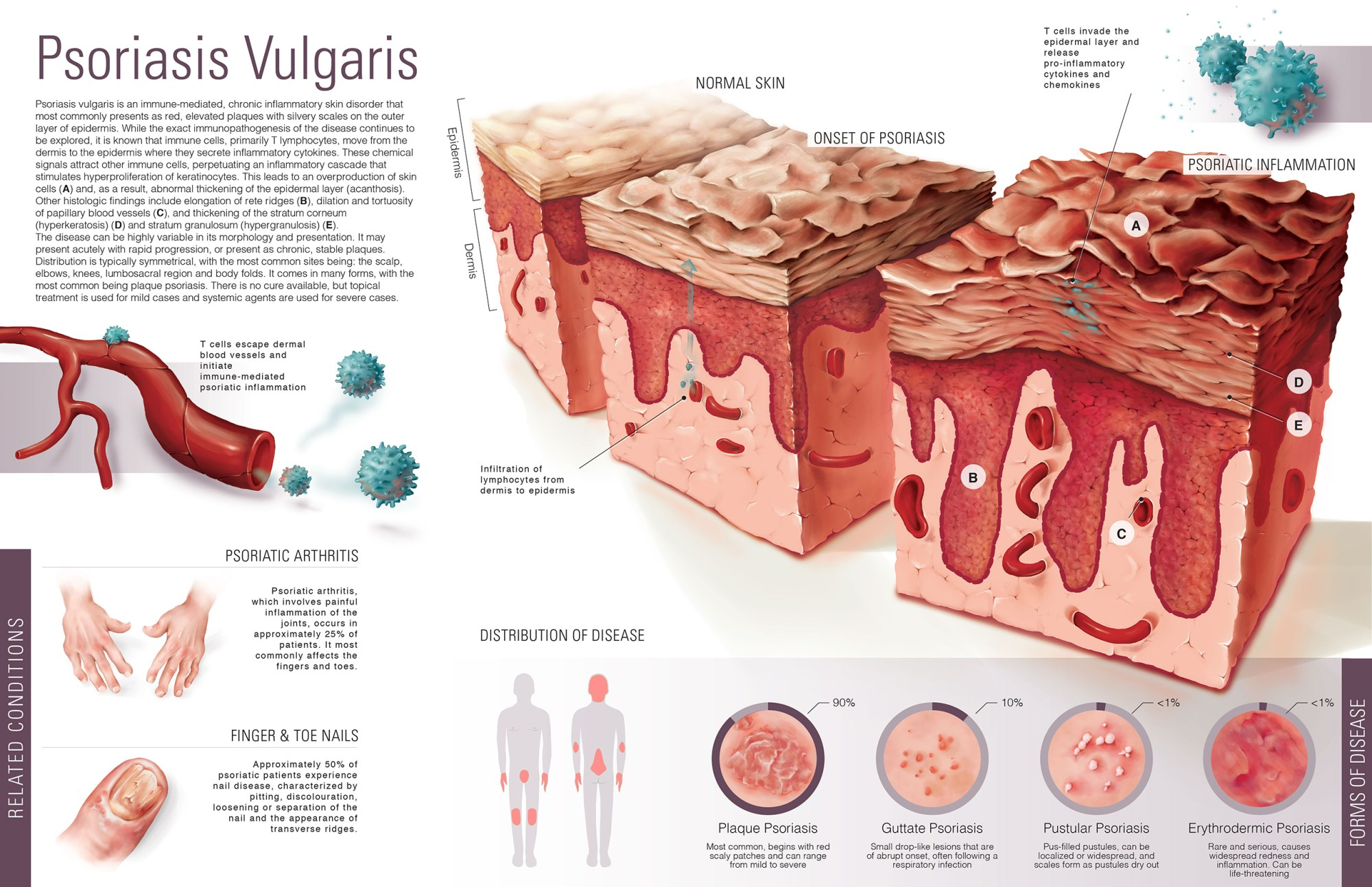 hight resolution of common skin disorders