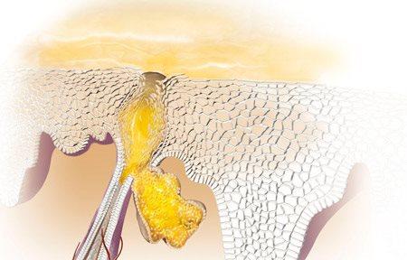 Графична илюстрация на хиперкератоза.