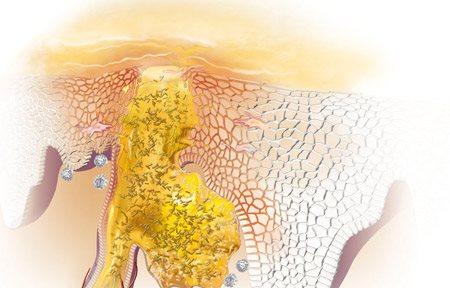 Графична илюстрация на възпаление.