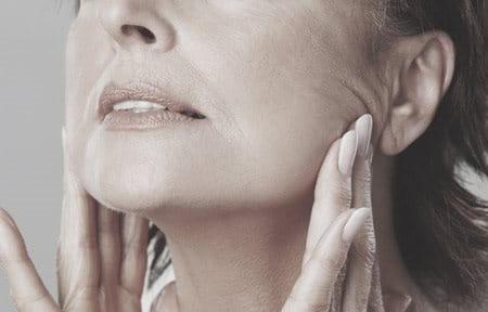 Žena pokazuje gubitak volumena rastezanjem kože lica.