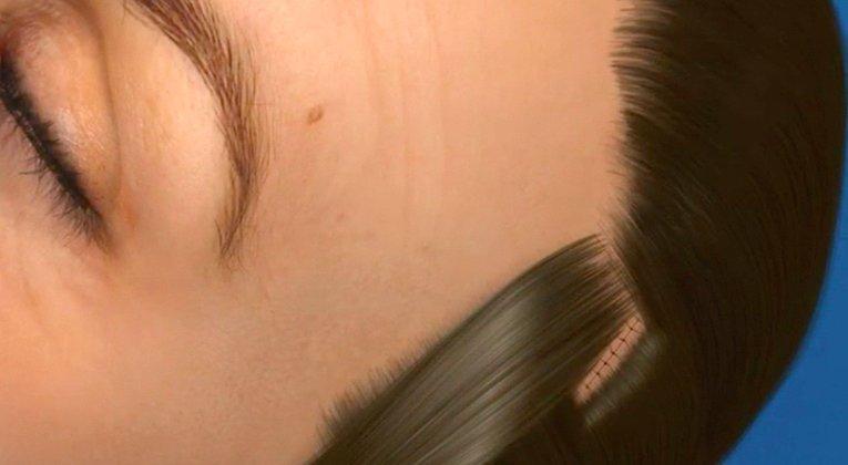 nella basetta, e un paio di centimetri o più dietro l'orecchio e nei capelli della regione occipitale
