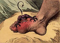 Gout, a 1799 caricature by James Gillray