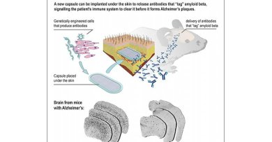 This is an infographic of how the implanted capsule releases antibodies to the brain. Credit Patrick Aebischer (EPFL)