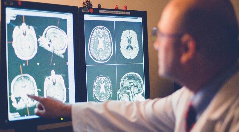 Geriatric psychiatrist Ricardo Salazar, M.D., studies a brain MRI of a patient suspected to have Alzheimer's disease. Credit Raul De La Cruz / TTUHSC El Paso
