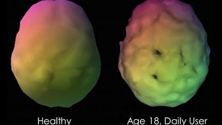 This shows a sample case of a visual 3-D rendering of a baseline SPECT scan of a longstanding marijuana user compared to a control subject. The marijuana user has multiple perfusion defects with lower perfusion shown as scalloping and gaps in perfusion of the temporal and parietal areas. Credit Journal of Alzheimer's Disease