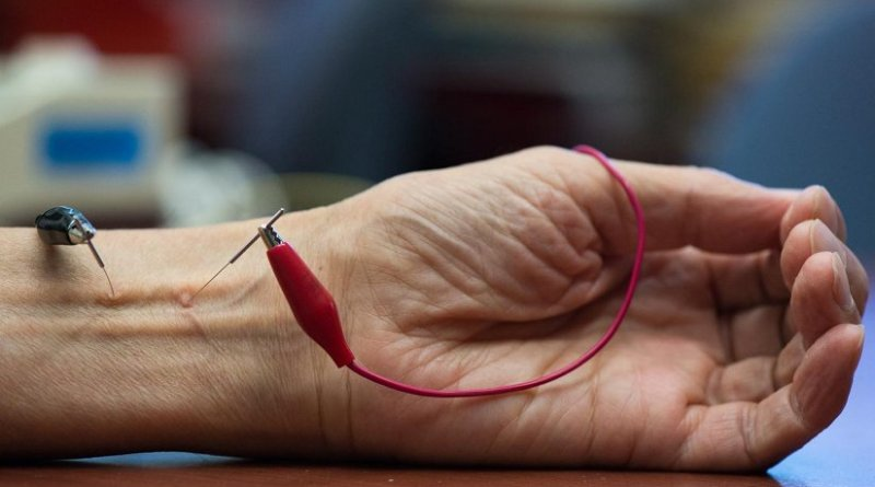 The UCI study shows that repetitive electroacupuncture evokes a long-lasting action in lowering blood pressure in hypertension. Credit Chris Nugent / UCI