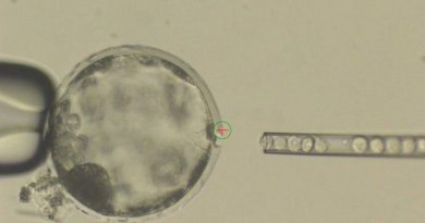 This photograph shows injection of human iPS cells into a pig blastocyst. A laser beam (green circle with a red cross inside) was used to perforate an opening to the outer membrane (Zona Pellucida) of the pig blastocyst to allow easy access of an injection needle delivering human iPS cells. Credit Courtesy of Juan Carlos Izpisua Belmonte
