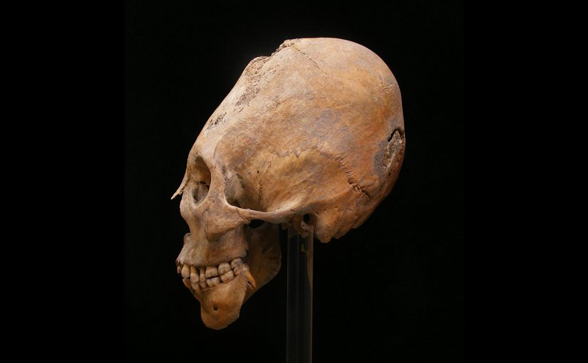 A modified skull from Gy?r. The practice of modification originated in central Asia and has been associated with Huns and other nomadic populations. Credit Erzsébet Fóthi, Hungarian Natural History Museum Budapest