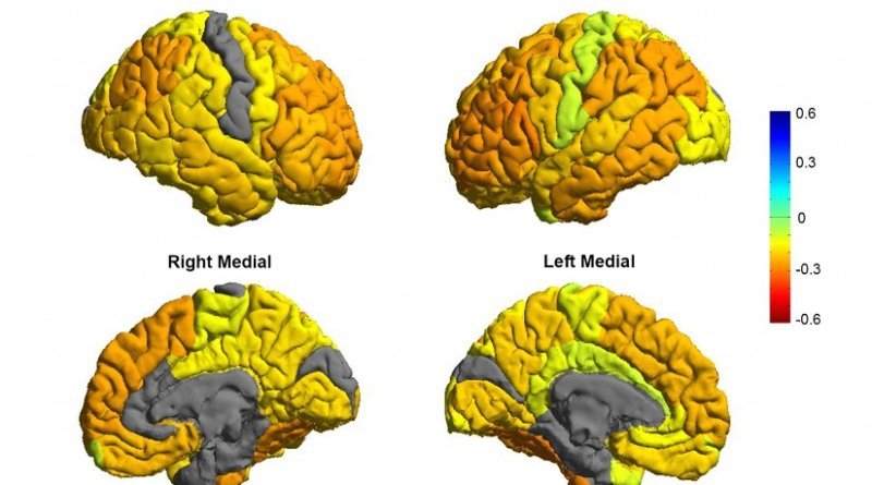 Bipolar patients tend to have gray matter reductions in frontal brain regions involved in self-control (orange colors), while sensory and visual regions are normal (gray colors). Credit Image courtesy of the ENIGMA Bipolar Consortium/Derrek Hibar et al.