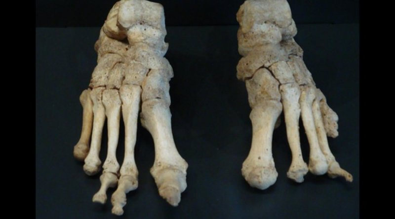 These are feet bones, severely affected by leprosy, from the Om Kloster museum in northern Jutland Denmark. Credit Saige Kelmelis