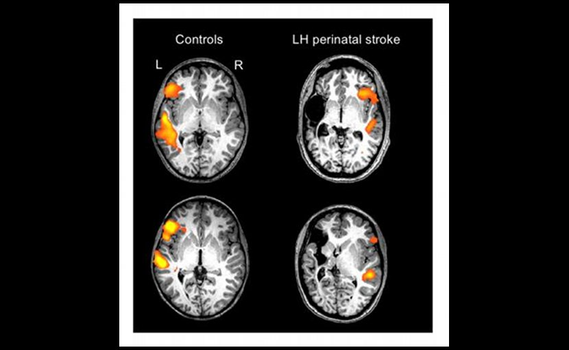These are individual scans of two healthy controls and two individuals with a left-hemisphere (LH) perinatal stroke. The orange/yellow activation shows the normal language areas of the left hemisphere in healthy individuals, as compared with the reorganized language areas in individuals with a left-hemisphere perinatal stroke. Credit Elissa Newport