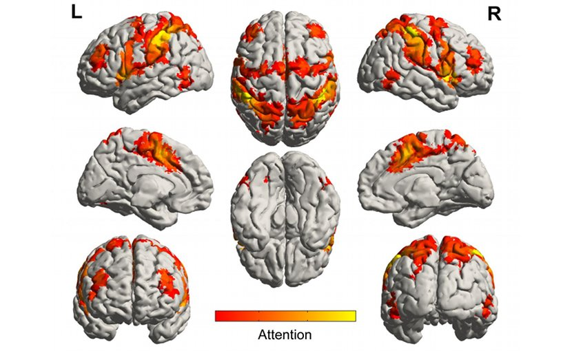 This is a diagram of brain networks involved in processing attention. Credit Brain Network Lab