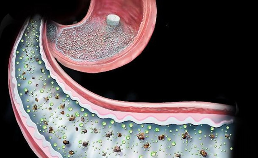 This is an image of 'surgery in a pill' in the intestine. Credit Brigham and Women's Hospital and Randal Mckenzie