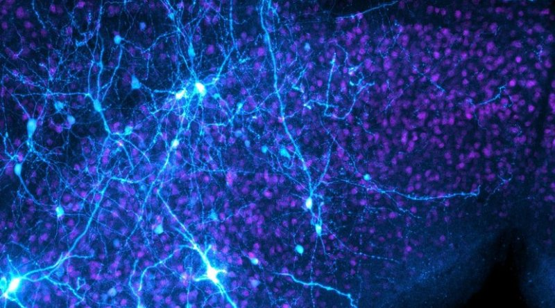 These are escape decision neurons in the mouse midbrain. Credit Sainsbury Wellcome Centre