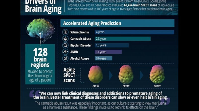 Drivers of Brain Aging