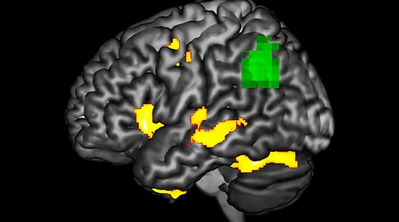 This image highlights areas in a PPA-affected brain during a language task where researchers observe functional abnormality (green) and structural degenerating (yellow). The green areas may be at-risk or dysfunctional, even if the neurons are not dead yet. (Courtesy: Aneta Kielar) Credit Aneta Kielar