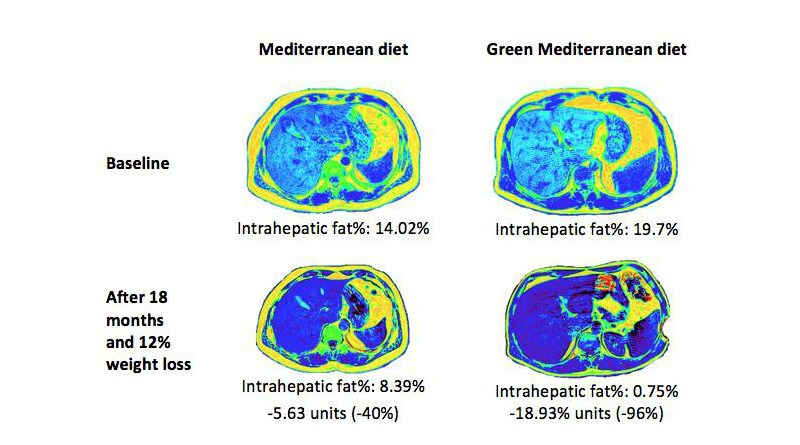 MRI photos illustrate the green MED diet effect on hepatic fat loss A green Mediterranean (MED) diet reduces intrahepatic fat more than other healthy diets and cuts non-alcoholic fatty liver disease (NAFLD) in half, according to a long-term clinical intervention trial led by Ben-Gurion University of the Negev researchers and a team of international colleagues. CREDIT Gut 2021