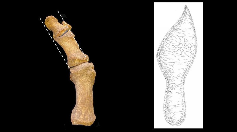Left: Excavated medieval foot bones showing hallux valgus, with lateral deviation of the great toe. CREDIT:Jenna Dittmar. Right: Sole of adult's shoe from late 14th century Cambridge, showing pointed shape. CREDIT: Cambridge Archaeological Unit
