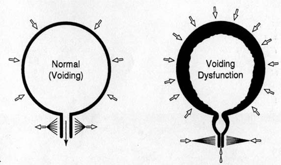Dysfunctional Voiding in Pediatrics: A Review of