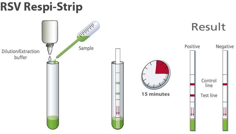 Rapid test for detection of Respiratory Syncytial Virus