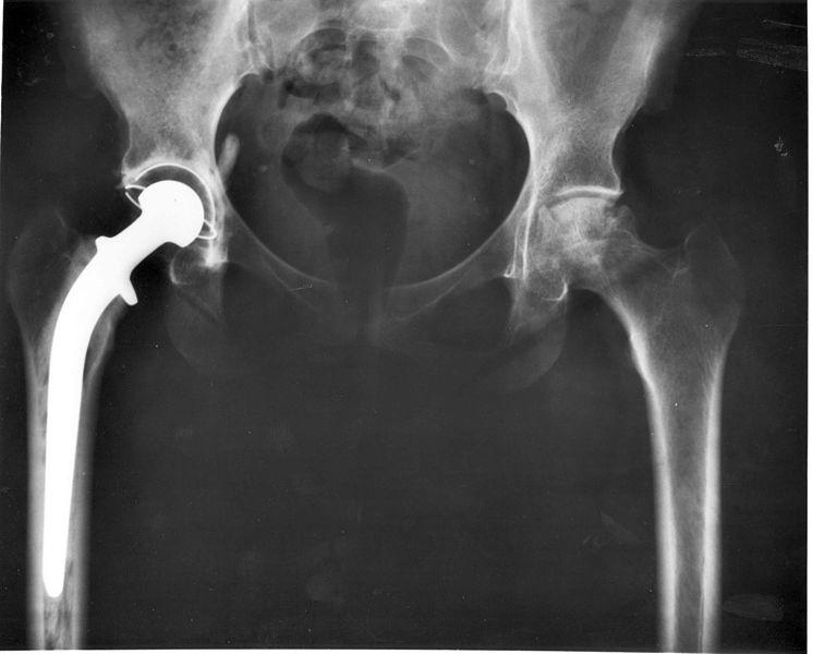 Protesi d'anca difettose, malasanità e malagiustizia per 1500 persone