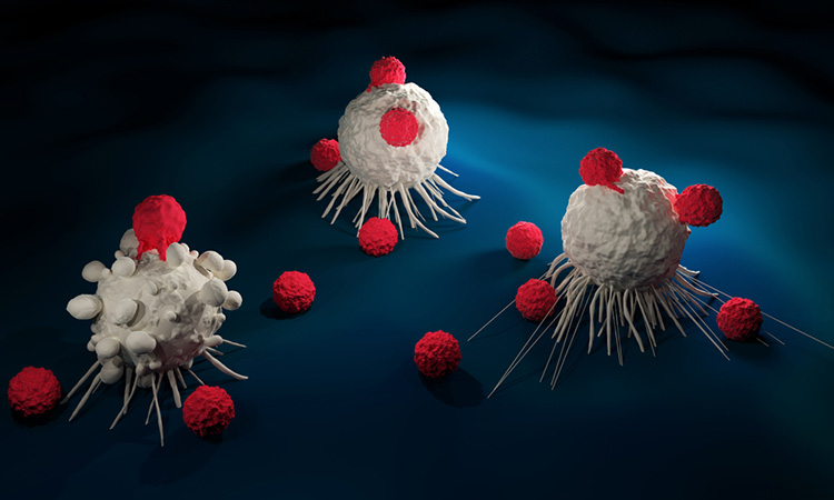 NICE recommends new CAR T cell therapy to treat mantle cell lymphoma.