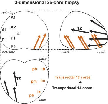 Optimal Sampling Sites for Repeat Prostate Biopsy: A