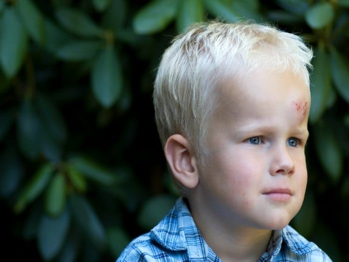 Qu hacer cuando un nio se golpea la cabeza  Salud y nios
