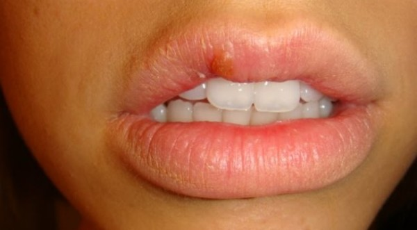 Doesn't Everyone Get Cold Sores? Does That Mean That Everyone Has Herpes? 2