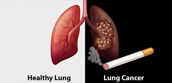Image result for lung cancer