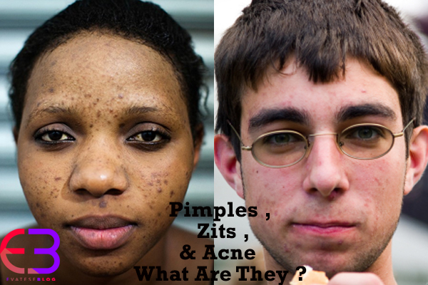 Pimples , Zits & Acne , What Are They