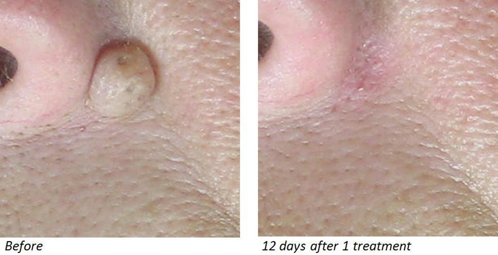 CO2 laser mole removal in Birmingham non-surgical DEKA CO2