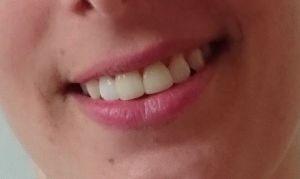 tanden-uiteindelijk