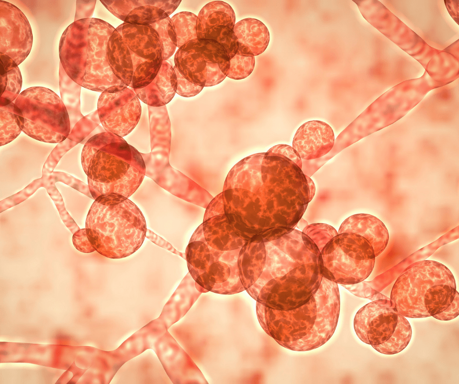 How to get rid of pesky candida?