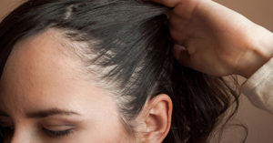Get Rid of Dry Flaky Scalp