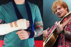 Ed Sheeran Broke His Arm After Being Hit By a Car, Rushed To Hospital in London