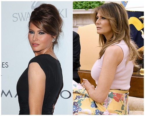 Melania Trump Gets Breast Implants