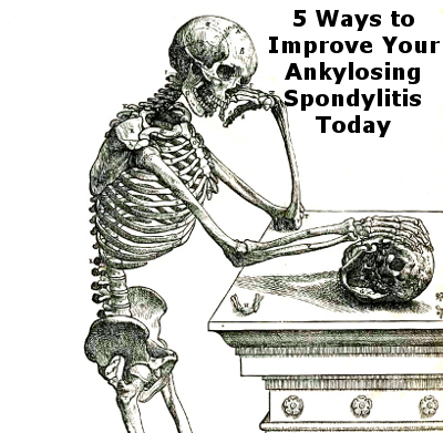 Five Ways To Improve Your Ankylosing Spondylitis Treatment Today
