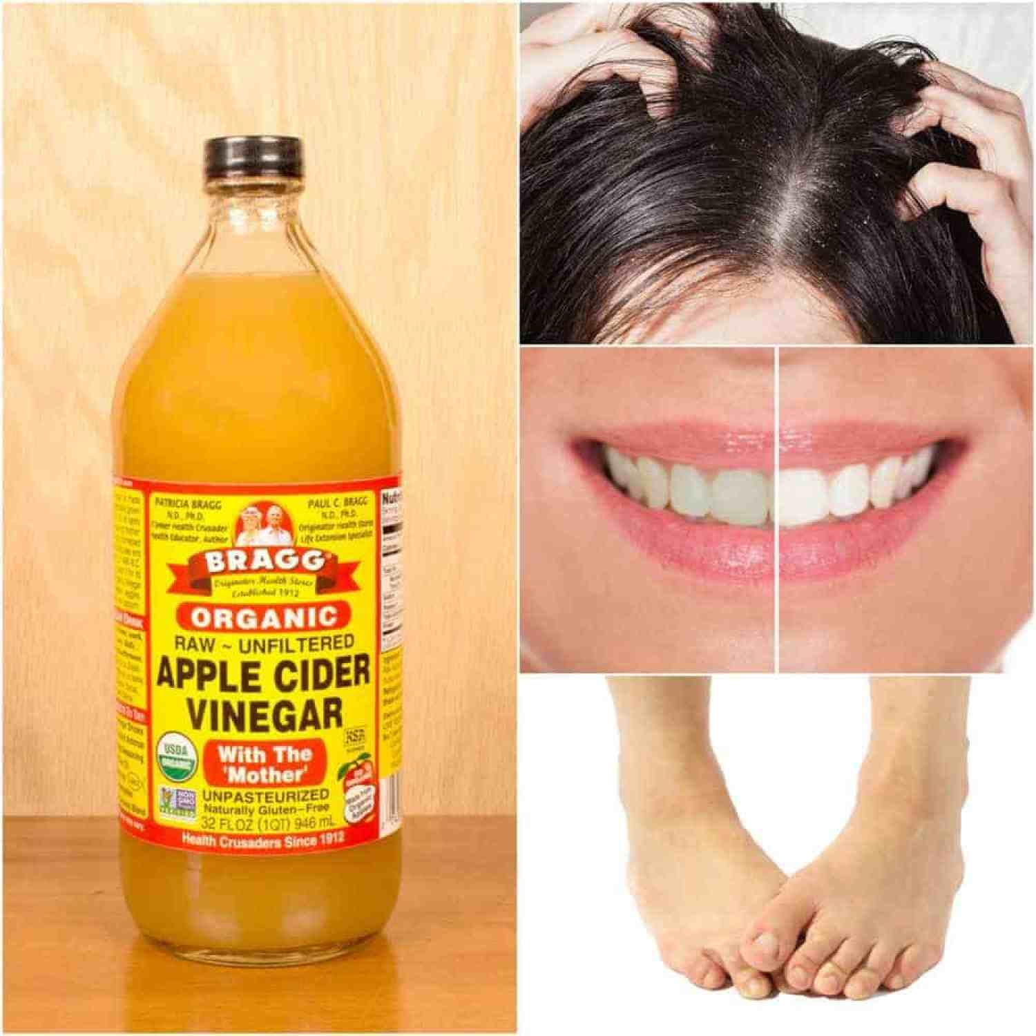 Apple Cider Vinegar to Make Your Life Easier