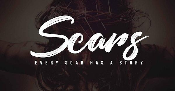 Scars Tell A Story