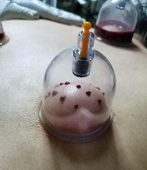 Hijama Cupping EverythingSunnah.com Portland Oregon
