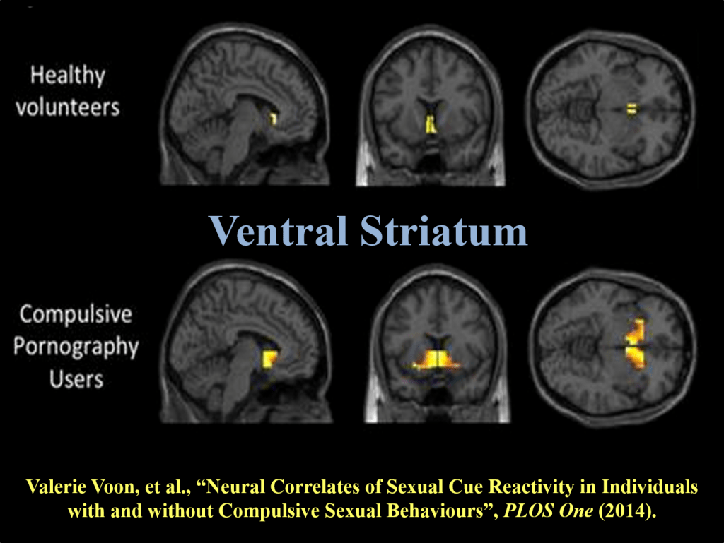 Image result for Ventral striatum activity when watching preferred pornographic pictures is correlated with symptoms of Internet pornography addiction