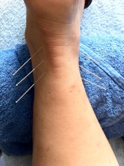 dry needling canley heights, needle, pain relief, needling, western acupuncture, Canley Heights Physiotherapy