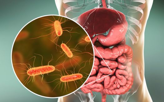 Risultati immagini per disbiosi intestino restart, batteri parassiti