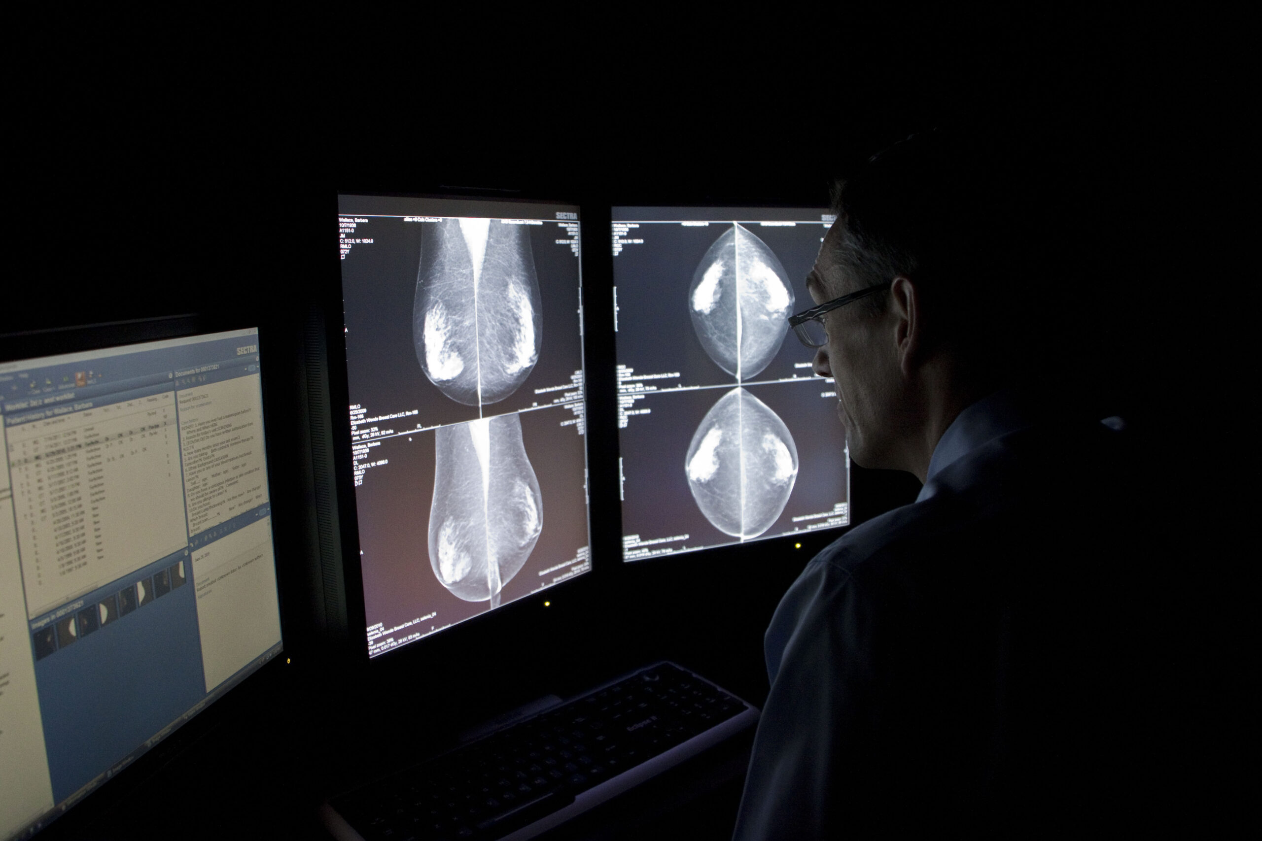Radiologist reading mammogram