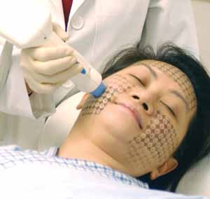 thermage facial