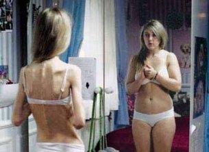Pérdida de volumen cerebral producia por la anorexia