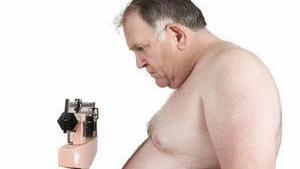 Obesidad mórbida y su posible origen genético