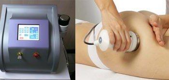 Ultracavitación, nueva lipoescultura sin cirugía